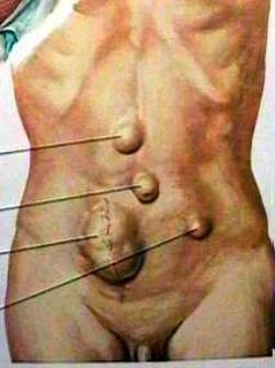 how to detect a hernia in abdomen